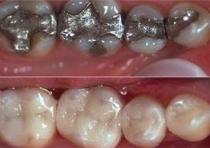 before and after results using CEREC Technology