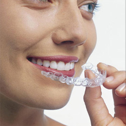 invisalign treatments Temecula