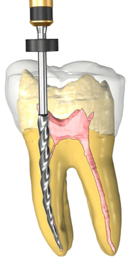 root canal dentist Temecula